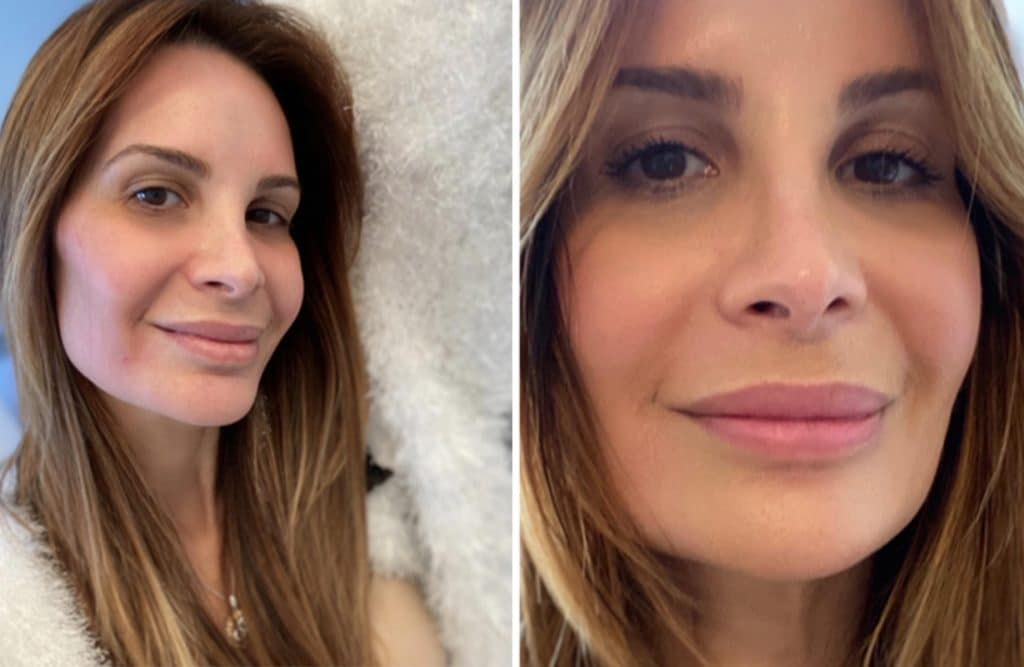 One Patient's Experience With Fraxel Laser Resurfacing
